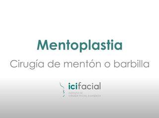 Mentoplastia: Cirugía del mentón o barbilla por Dr. Macia Colón de Icifacial