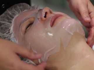 Peeling facial de ácido láctico