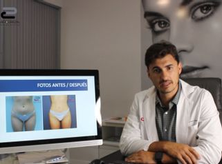 Liposucción - Doctor Pérez-Cerezal