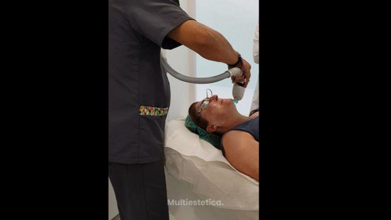 Rejuvenecimiento facial - Clínica Fama