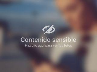 Testimonio ginecomastia  - Dra. Ana Martinez Padilla